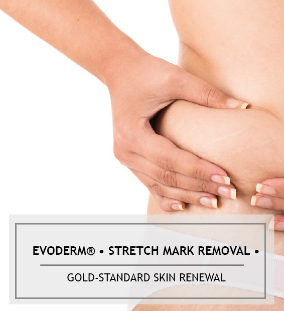 evoderm-stretchmarkremoval