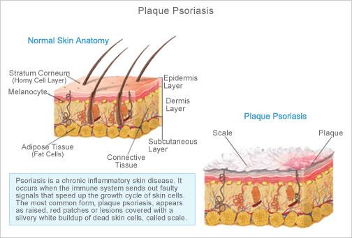 Quel onguent enduire sur le psoriasis