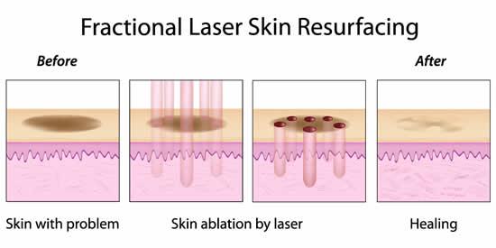 emerge-fractional-laser
