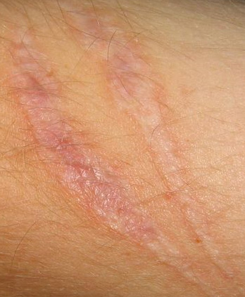 Scars Trauma And Surgical Scarring Advanced Dermatology