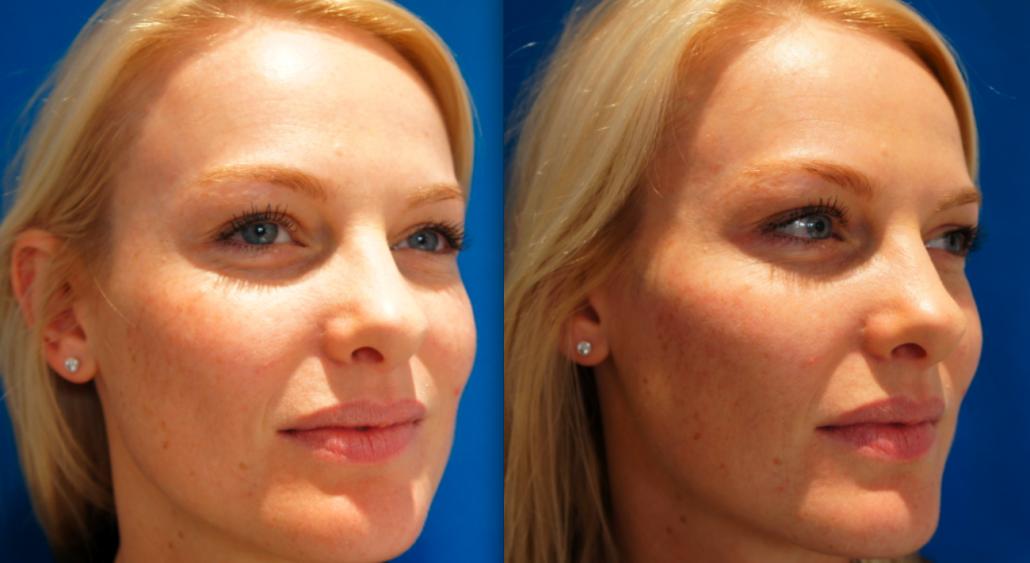 Cheek Fillers — Advanced Dermatology