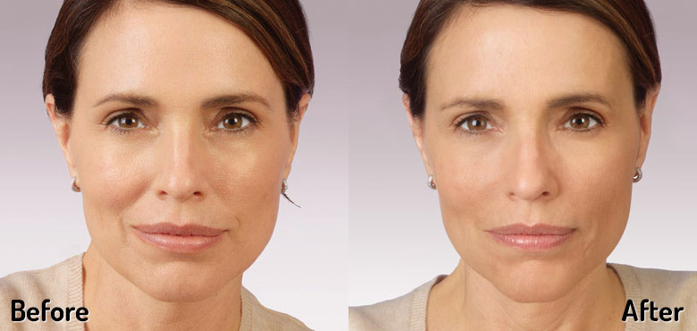 Cheek Fillers — Advanced Dermatology