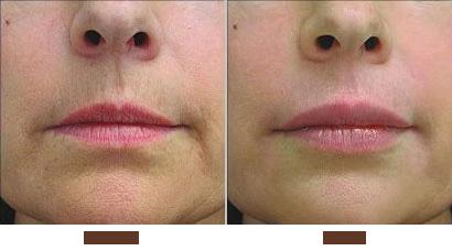 Lip Injections Sydney Advanced Dermatology