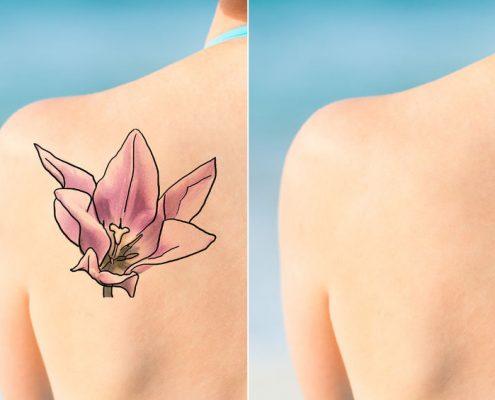 Tattoo-Removal-Sydney