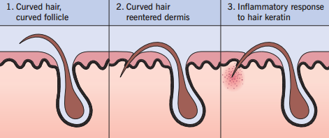 ingrown hair treatment advanced dermatology