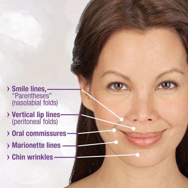 advanced-dermatology-smile-lines-treatment