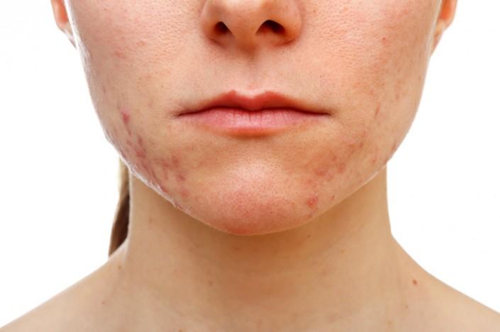 jawline-acne