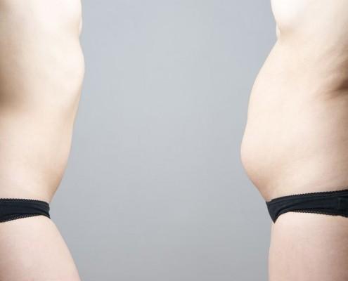 3D Lipo Review - Advanced Dermatology