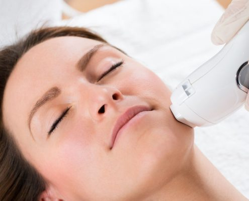 TheraClear Acne Treatment