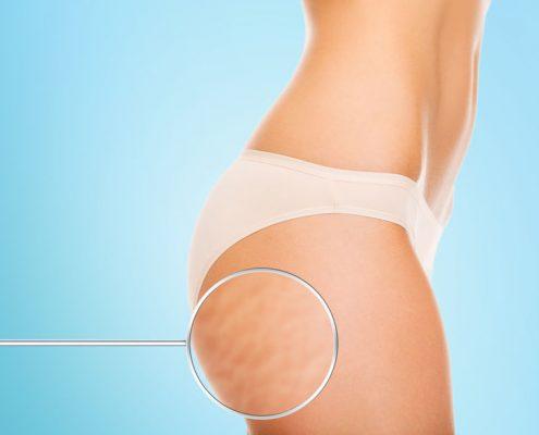 best-cellulite-treatments